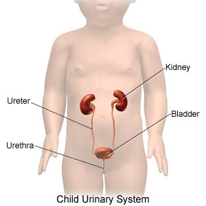 Urinary tract infection, children