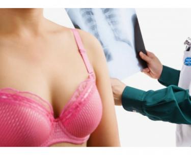 Καρκίνος μαστού: Διπλήσιασμός του χρόνου επιβίωσης.