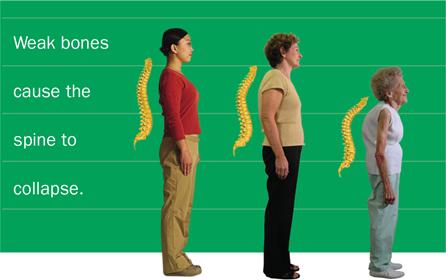 4 Hidden Signs Your Bones Are In Trouble