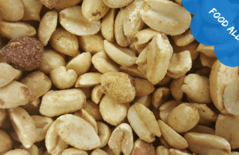 food-allergy-linked-to-skin-exposure-and-genetics-study-finds