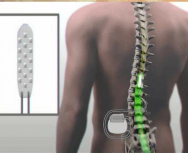 Ο άνθρωπος κινεί παράλυτα πόδια χρησιμοποιώντας συσκευή που διεγείρει το νωτιαίο μυελό.