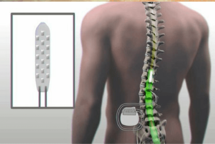 man-moves-paralyzed-legs-using-device-that-stimulates-spinal-cord