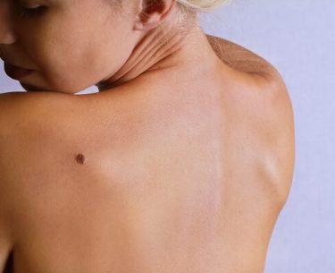 Ο σωστός τρόπος για να αφαιρέσετε τις επιγραφές του δέρματος