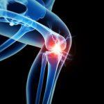 Orthopaedic Surgery (6)