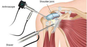 Shoulder-arthroscopy-2