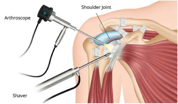 Shoulder-arthroscopy-2
