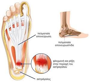 Πελματιαία-απονευρωσίτιδα-συμπτώματα
