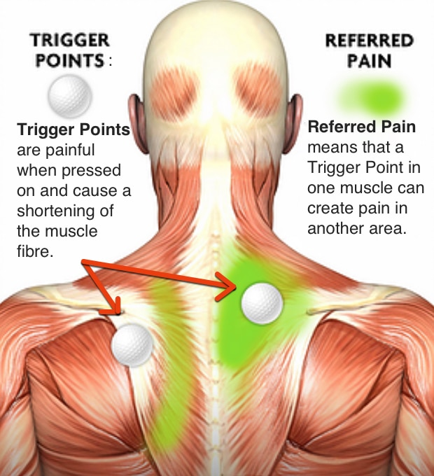 Trigger-Points-and-Referred-Pain