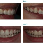 Smalto Dental clinic Nicosia