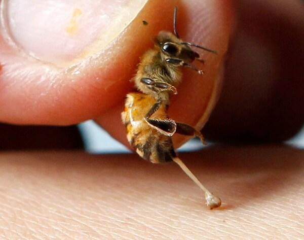 Τσιμπήμα από μέλισσα ή σφήκα