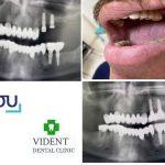 Vident Dentistry Cyprus
